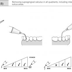 ultrasonic scaler insert G3 EMS