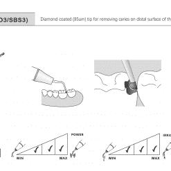 cavity preparation tip sbl