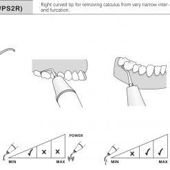 scaler insert P2R